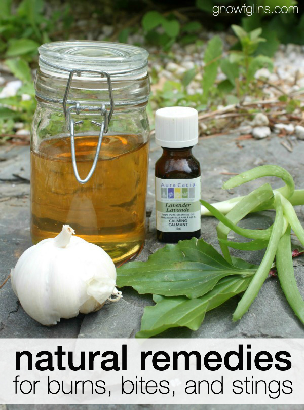 Natural Remedies for Burns, Bites, and Stings | Summer goes hand in hand with outdoor adventures. With the sun shining and the lure of swimming, kids out of school are free to spend their days playing outside. But burns, bites, and stings can stop that summer fun dead in its tracks. Thankfully, several natural remedies will have you back to enjoying summer activities in no time! | TraditionalCookingSchool.com