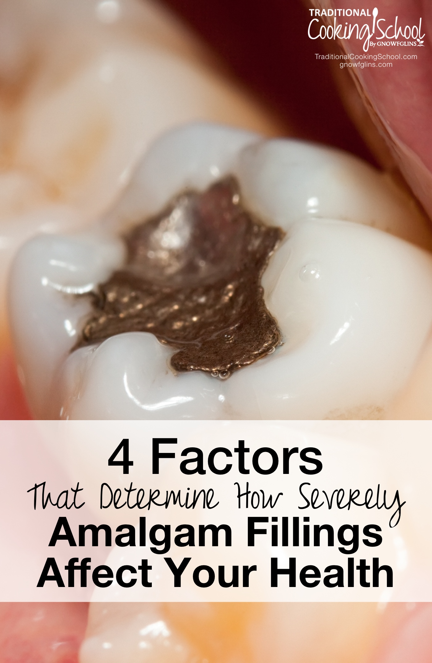 4 Factors That Determine How Severely Amalgam Fillings Affect Your Health | Does long-term, chronic exposure to low doses of mercury vapor pose any risks? What might the health effects be? And, are there any subsets of our population who might have greater sensitivity to mercury? These are the questions we will answer in this continuation of our discussion on mercury amalgam fillings. | TraditionalCookingSchool.com