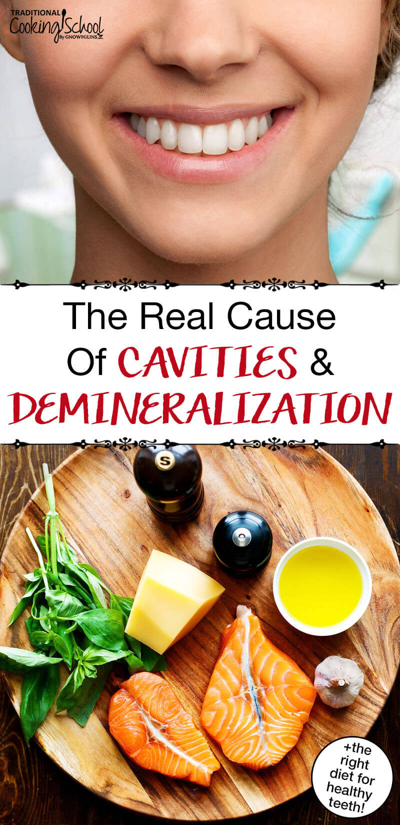 Despite the myths, sugar and bacteria aren't the real culprits that cause tooth decay. Learn the REAL cause of cavities and demineralization, the foods you should avoid if you've experienced tooth decay (hint: over 85% of Americans have tooth decay!), plus the RIGHT diet for healthy teeth.