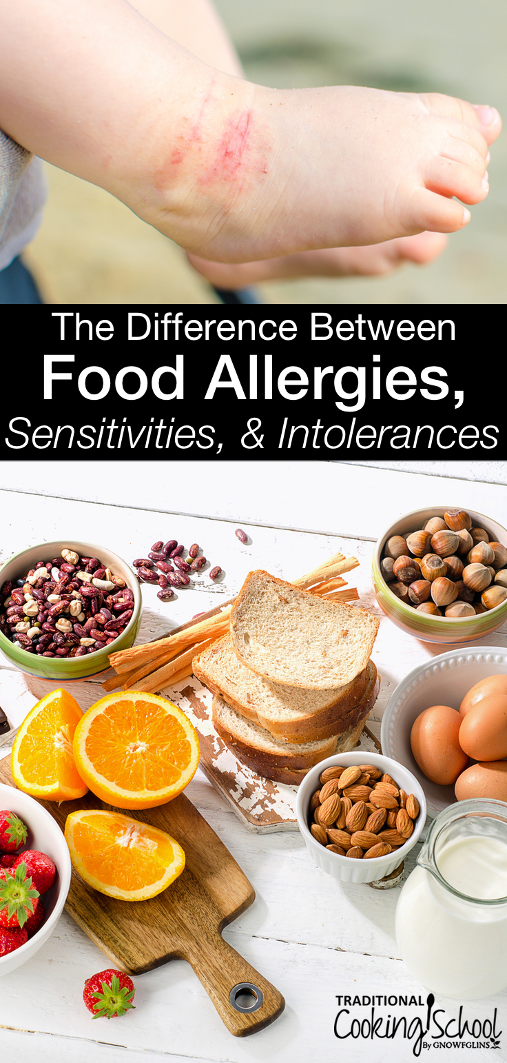 Do you have a food allergy? Wait, a food sensitivity? Or could it be a food intolerance? Do you know the difference between food allergies, sensitivities, & intolerances? Contrary to popular belief, the terms are not interchangeable and knowing which is which isn't as complicated as it seems. Learn the facts, plus the most reliable tests to find out which you may have!