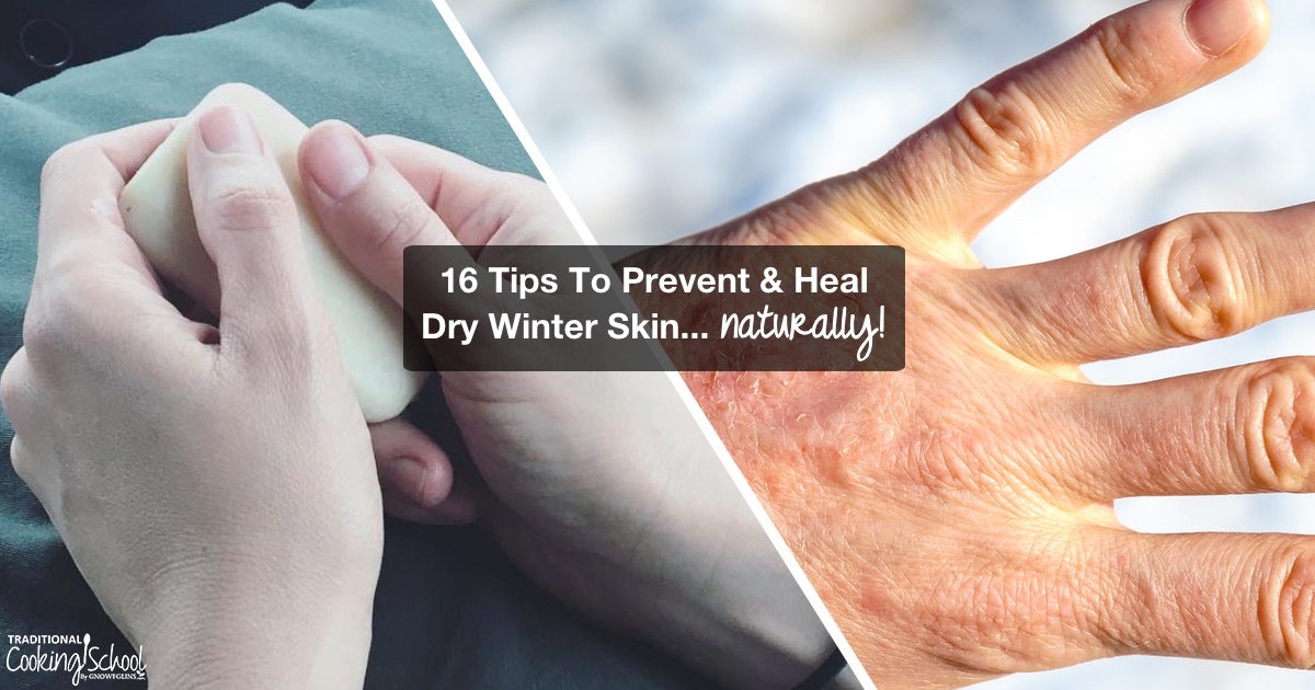 Does dry winter skin keep you scratching or in pain? Do you feel like you can't get enough lotion to heal your dry, cracking, or bleeding skin? Watch, listen, or read for my 16 tips to prevent and heal dry winter skin naturally, plus learn the BEST things to put on your skin to keep it moisturized (hint: it's NOT lotion!).