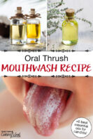 "Photo collage of a child's tongue covered in white, and various small bottles of essential oils. Text overlay says: ""Oral Thrush Mouthwash Recipe (+ 6 best essential oils for candida!)"""